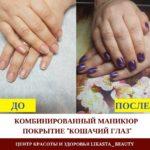 Покрытие ногтей гель-лаком Shellac до/после