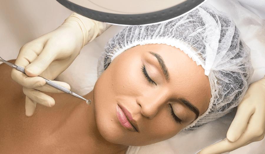 Механическая чистка лица
